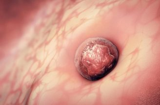 Is implantation bleeding normal in early pregnancy?