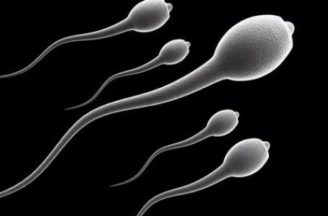 Abnormal sperm morphology: What does it mean?